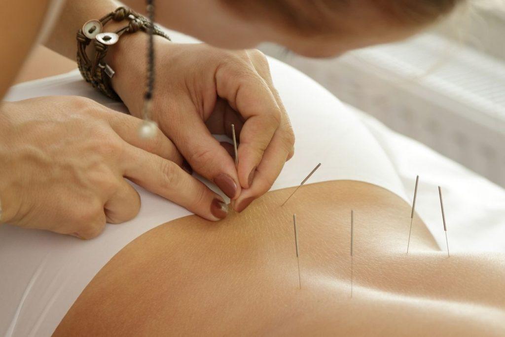 Acupuncturepour évacuer le stress: est-ce efficace ?