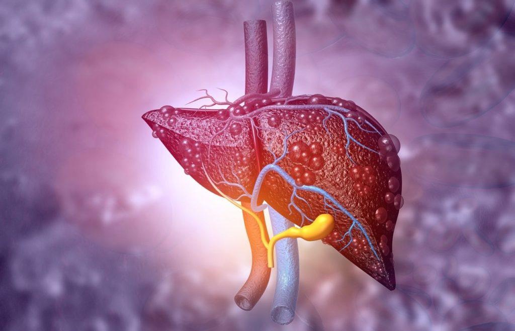 Cirrhose du foie et stress: comment soigner son foie malade?